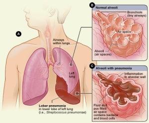 emfisema paru