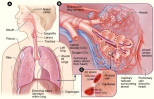 emfisema paru-